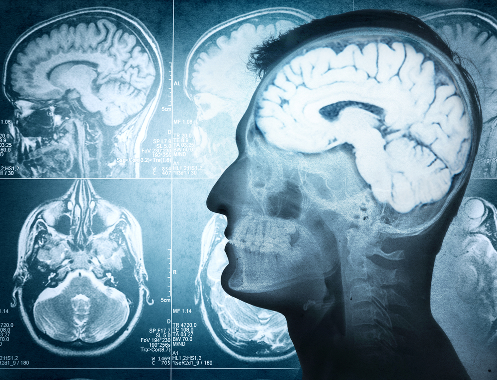 xray or cat scan of brain imaging